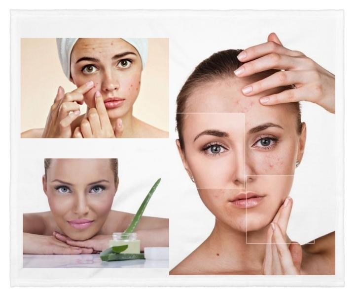 eliminar cicatrices del acné