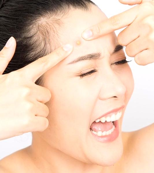 remedios caseros para marcas de acne